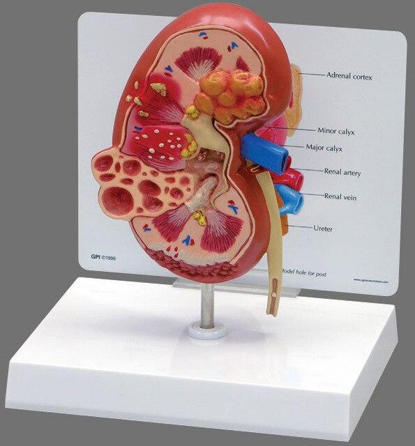 mô hình giải phẫu thận